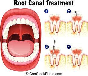 歯医者の, ベクトル, 運河, 根, 待遇