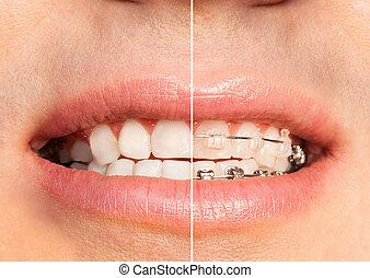 歯医者の, 口, なしで, 支柱, 歯, フルである