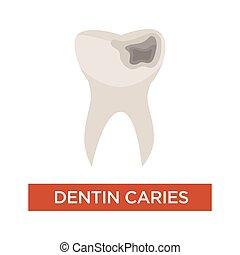 歯医者の, 損害, 歯, dentin, カリエス, 歯科医術, 穴, 心配
