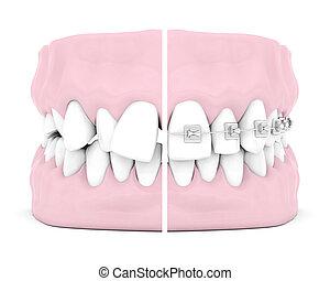 歯医者の, 支柱