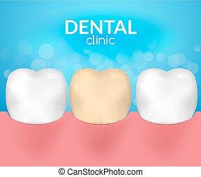 歯医者の, 歯科医, 歯, desease, 医院, ヘルスケア, 必要性, hygiene., 歯痛,...