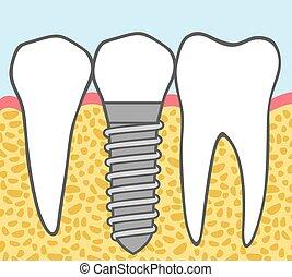 歯医者の, 移植