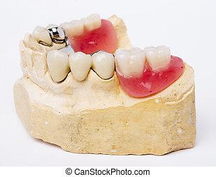 歯医者の, 義足