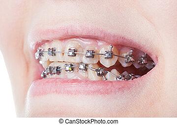 歯医者の, 鋼鉄, ブラケット, 上に, 歯, 終わり