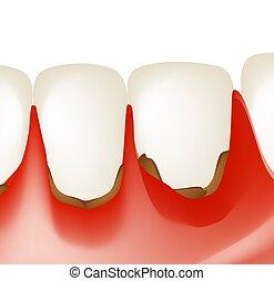 歯医者の, 隔離された, イラスト, infographics., ベクトル, 炎症, 背景, gums.,...