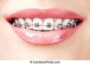 歯, ∥で∥, 支柱