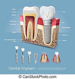 歯, 人間, 移植, イラスト, 歯医者の, ベクトル