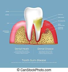 段階, 歯, 病気, 人間, イラスト, ゴム, ベクトル