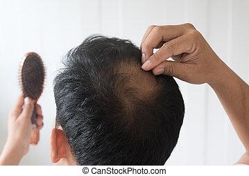 毛, について, 男性, loss., 心配した