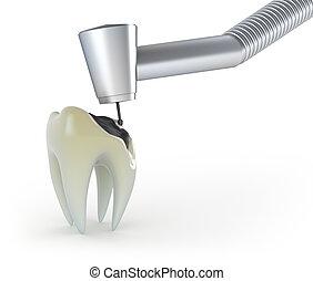 治療, ......的, a, 牙齒, 由于, 齲