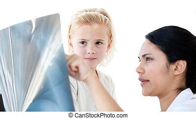注意, 女性 醫生, 顯示, an, x光, 到, a, 小女孩