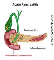 激しい, pancreatitis