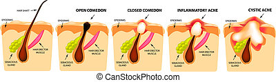 炎症性, ニキビ, acne., comedones, 隔離された, イラスト, バックグラウンド。, infographics., ベクトル, タイプ, 閉じられた, skin., 開いた, 構造, 嚢胞性