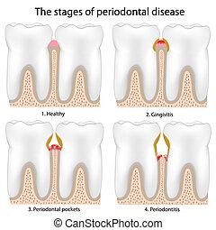 牙周的疾病