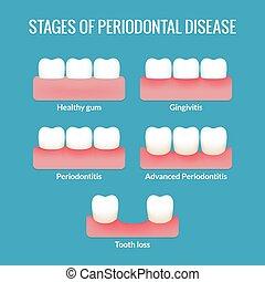 牙周的疾病, 圖表