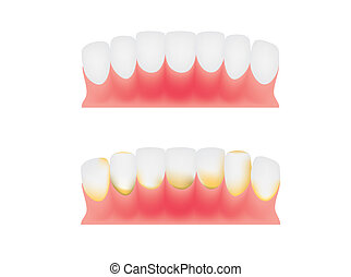 牙齒, 以及, 膠, 牙齒, 匾