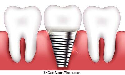 牙齒, 植入, 以及, 正常, 牙齒