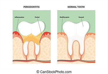 牙齒, 牙周的疾病