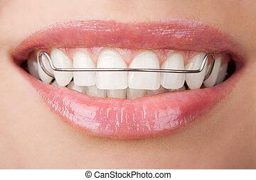 牙齒, 由于, 止動板