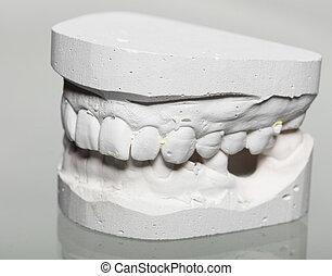 牙齒, 石膏, 模型, 模具, ......的, 牙齒, 在熟石膏里