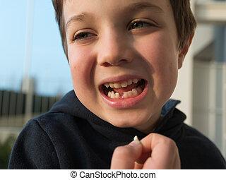 男の子, 彼の, 欠けている, 提示, 若い, 歯, 最初に