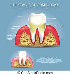 疾病, 插圖, 矢量, 樹膠, 人類牙齒, 階段