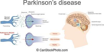 疾病, parkinson's