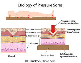 病因, の, 圧力, sores, eps8