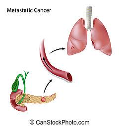 癌症, 傳播, 透過, 血液