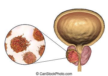 癌症, 前列腺, 描述