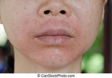 発疹, 皮膚, 提出すること, 人間, 反応, アレルギー