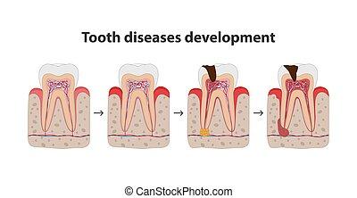 發展, 套間, 圖象, 海報, 醫學, 被隔离, 插圖, 疾病, 背景。, 樹膠, 牙齒, 白色的牙齒, design.