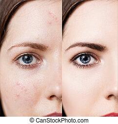 皮膚, 問題, 女, 彼女, 顔