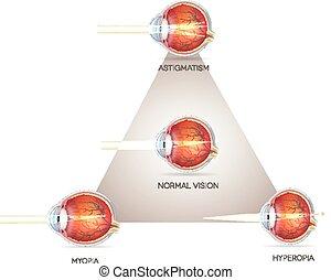 目, 三角形, ビジョン