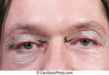 目, 後で, まぶた, 手術