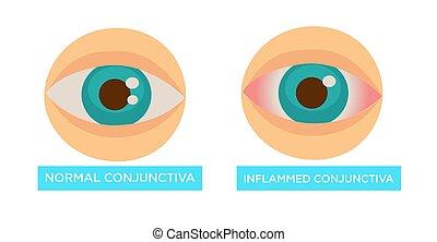 目, 正常, 病気, 燃え上がらせる, 傷, 結膜