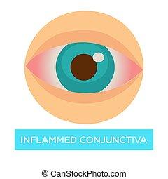 目, 燃え上がらせる, 傷, 結膜, 健康, conjuntivitis, 薬