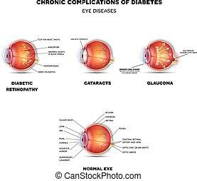 目, 病気, 糖尿病患者