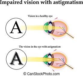 目, astigmatism., 見なさい、, 缶, 害された, ビジョン