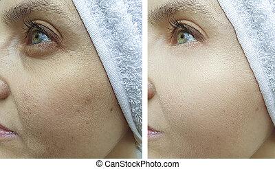 眼睛, 以前, 脸, 在之后, 皱纹, 处理, 妇女