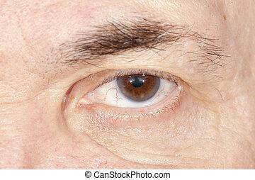 眼睛, 疾病