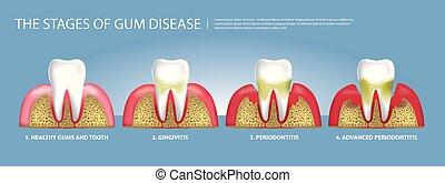 矢量, 人類, 樹膠, 牙齒, 階段, 疾病, 插圖