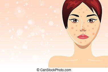 矢量, 粉刺, treatment=, 描述, 美丽的妇女, 脸