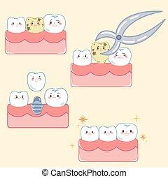移植, 概念, 歯