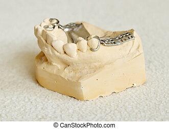総入れ歯, フレームワーク, 金属, 部分的