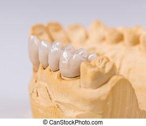 総入れ歯, 作られた, セラミックス