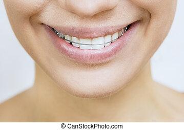 美しい, -, 保持器, 歯, 微笑, te, 女の子