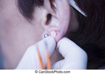 耳, 種, auriculartherapy, 待遇