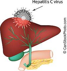 胆汁, c., イントロダクション, c, イラスト, ducts., day., system., ウイルス, ...