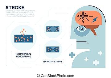 脳, ストローク, 病気